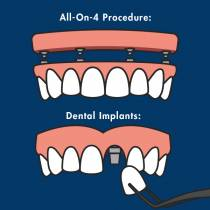 The All-On-4 Procedure Explained