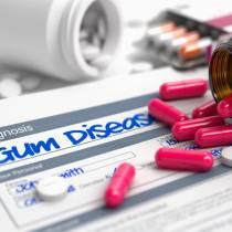 Medications & Your Teeth